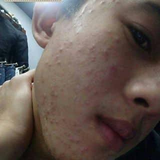 Thuốc bắc đẹp da của thienan138 tại Thừa Thiên Huế - 2841457